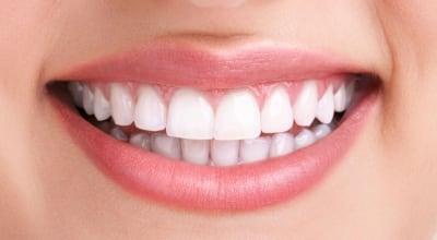 tandblekning-kista-tandläkare